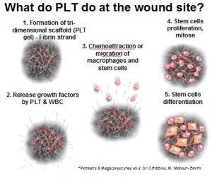 What does PLT do at the wound site?