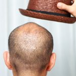 WHAT CAUSES HAIR LOSS? CAN PRP TREATMENT HELP?
