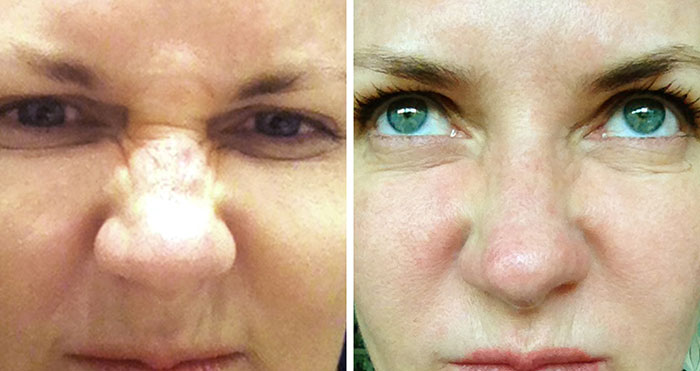 bunny lines Treatment - botox for nose wrinkles, , nose lines - before and after