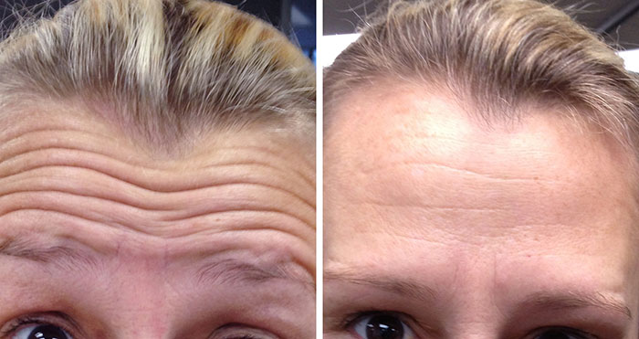 Dysport, Botox & Xeomine before & after treatment - Beautiphi NZ