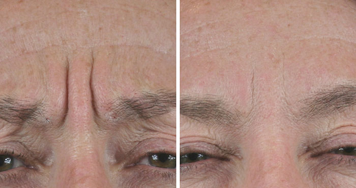 Frown Lines treatment - before and after