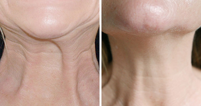 nefertiti lift treatment with botox - before and after