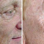Platelet Rich Plasma (PRP) Treatment | Vampire facelift | Beautiphi