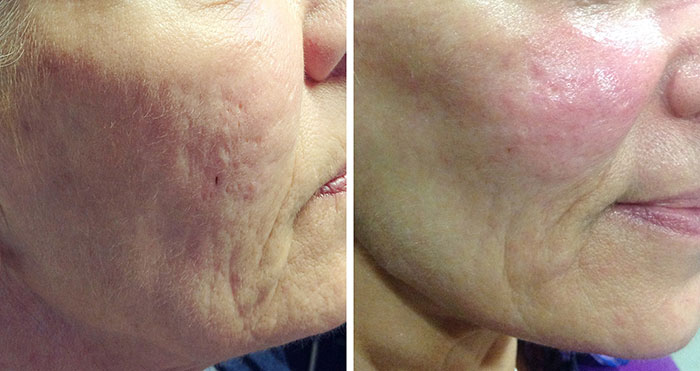 dermal needling before and after