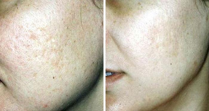 Microdermabrasion & Sonophoresis for complete skin rejuvenation - Beautiphi