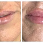 Lip fillers Auckland - Lip enhancement with dermal fillers