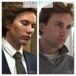 Men filler before & after-beautiphi-auckland