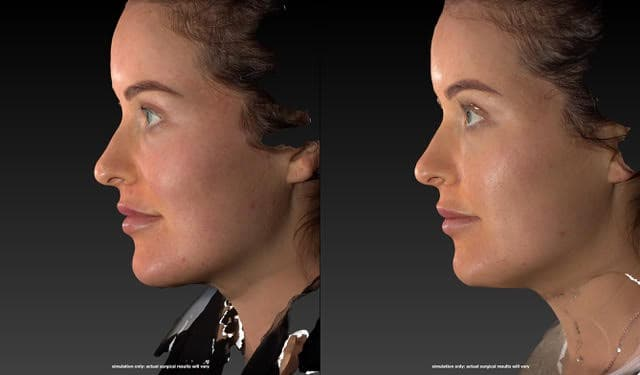 Nose filler before & after-beautiphi-auckland