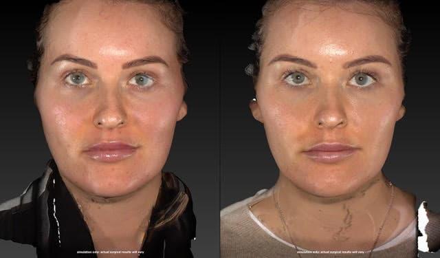 Liquid Face Lift Vectra Camera before & after-beautiphi-auckland
