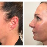 Profhilo before and after-beautiphi auckland