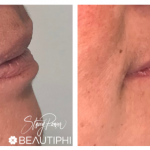lip fillers before and after - Beautiphi auckland